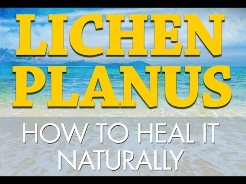Lichen planus, How to Heal It Naturally