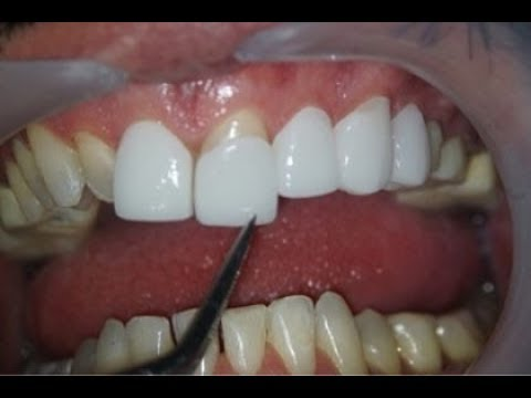 Hollywood Smile Veneers Trial & Smile Lift® Step By Step by Dr.Habib Zarifeh in Beirut, Dubai,Jeddah