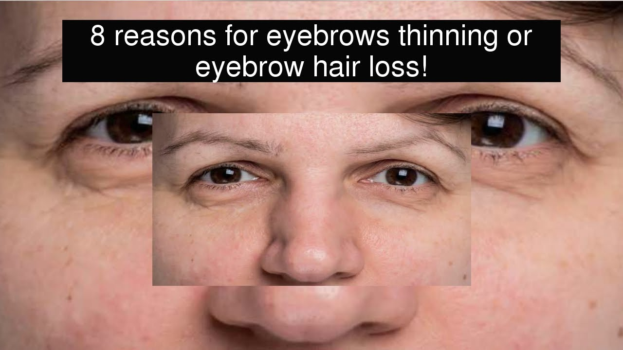 8 Reasons For Eyebrows Thinning Or Eyebrow Hair Loss Youtube