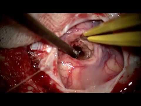 Удаление глубинной внутримозговой гематомы. Геморрагический инсульт. Нейрохирург Ошурков П.А.