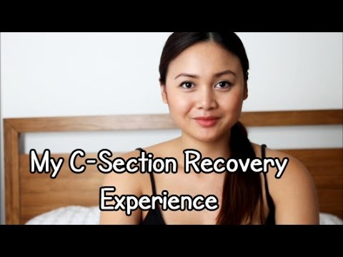 My C-Section Recovery Experience
