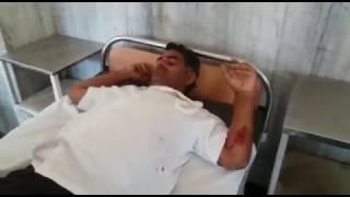 Firing jeet singh Chundawat hand injured
