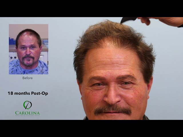 Unusual Pattern Hair Loss Treated With FUE Hair Transplant Surgery