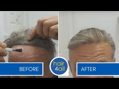 How to Clean a Lace Front Non-Surgical Hair Replacement System with Phil Osmond