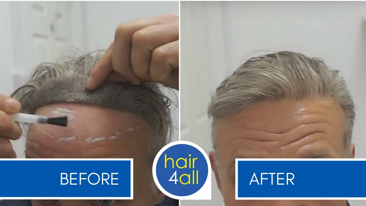 How To Clean A Lace Front Non Surgical Hair Replacement