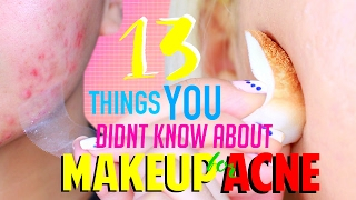 13 Things You NEVER Know About MAKEUP for ACNE Skin