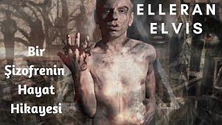 ELLERAN ELVIS  - Bir Şizofrenin Hayat Hikayesi ( 16 Mart Özel ) TÜRKÇE RAP