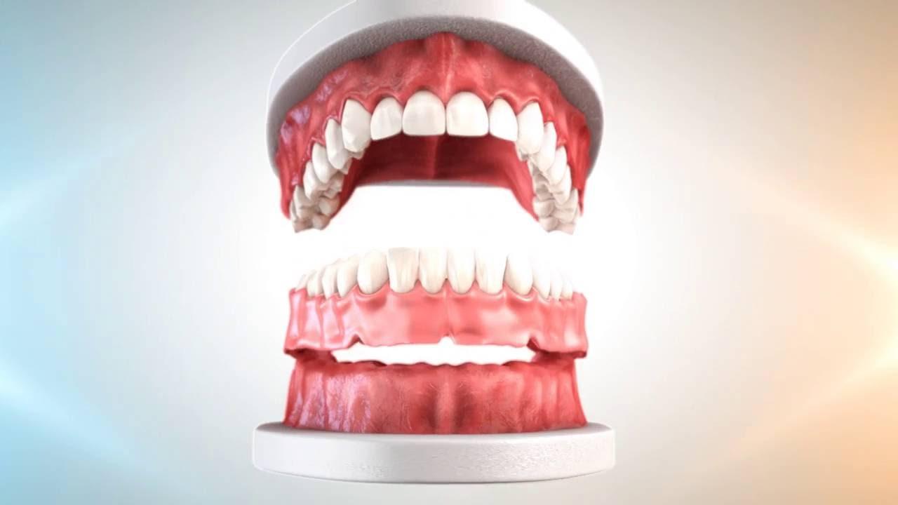 Proteză dentară fixată pe mini-implanturi