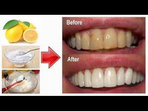 Wow Inilah 12 Cara Memutihkan Gigi Secara Alami Yang Bakalan
