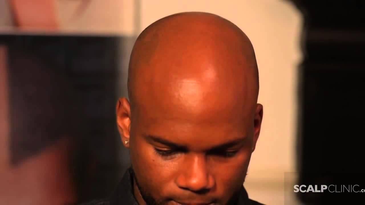 Hairline Restoration For Black Men Using Scalp Micro Pigmentation