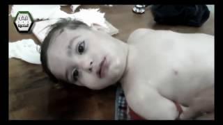 Слезы Сирии - Tears of Syria.