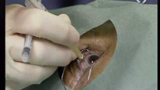 La  FOM en Canal 9: tratamiento contra la DMAE.