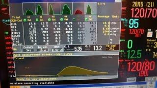 Cardiac output (the longer version)