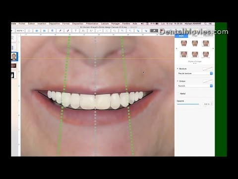 How to do a comprehensive smile design using Keynote