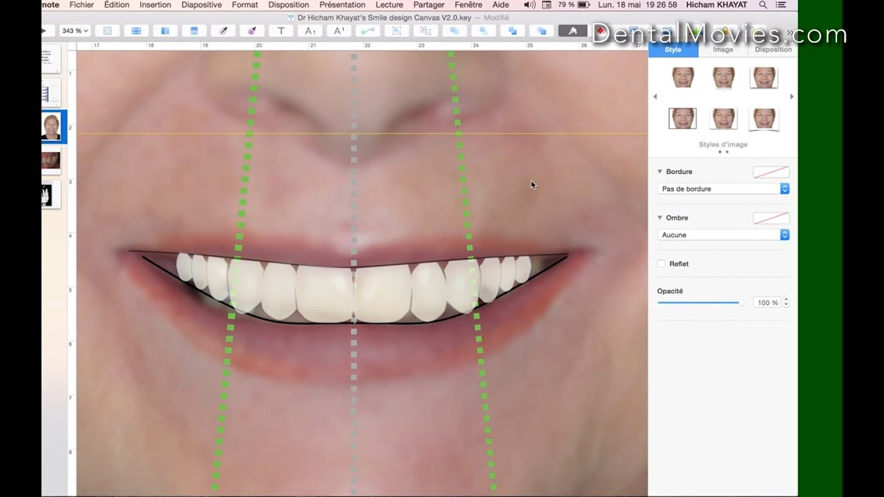 How To Do A Comprehensive Smile Design Using Keynote Youtube