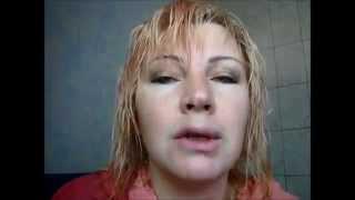 видео Аллергия на губах: причины, симптомы, лечение, виды