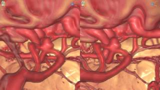 Brain Aneurysm - 3D Virtual Tour | UCLA Neurosurgery