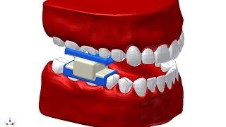 Стоматологическая фрезерная машинка