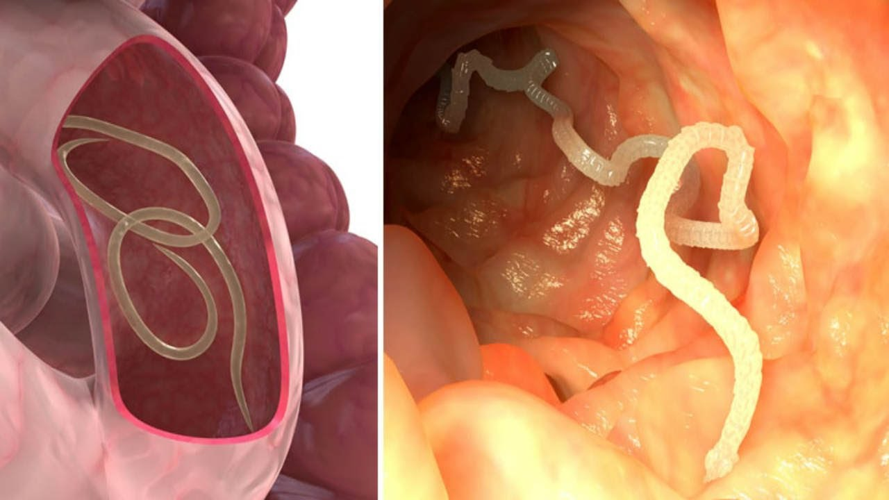 Natural Ways To Get Rid Of Intestinal Parasites