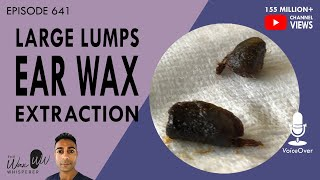641 - Large Lumps Of Ear Wax Extracted