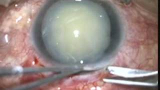Anterior luxation of the lens, Ectopia lentis, Intracapsular, Surgery