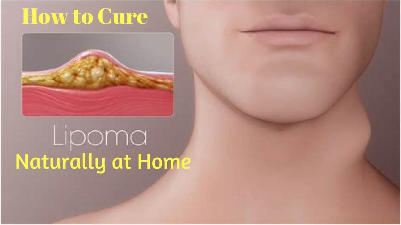 Lipoma removal the most effective method 41