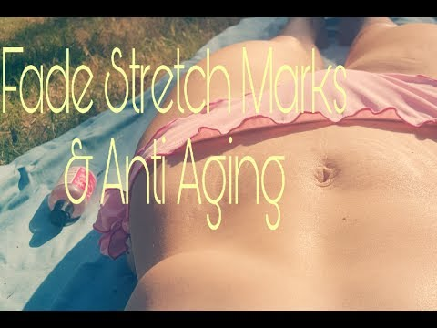 How to Fade Stretch Marks After Weight Loss / Anti- Aging