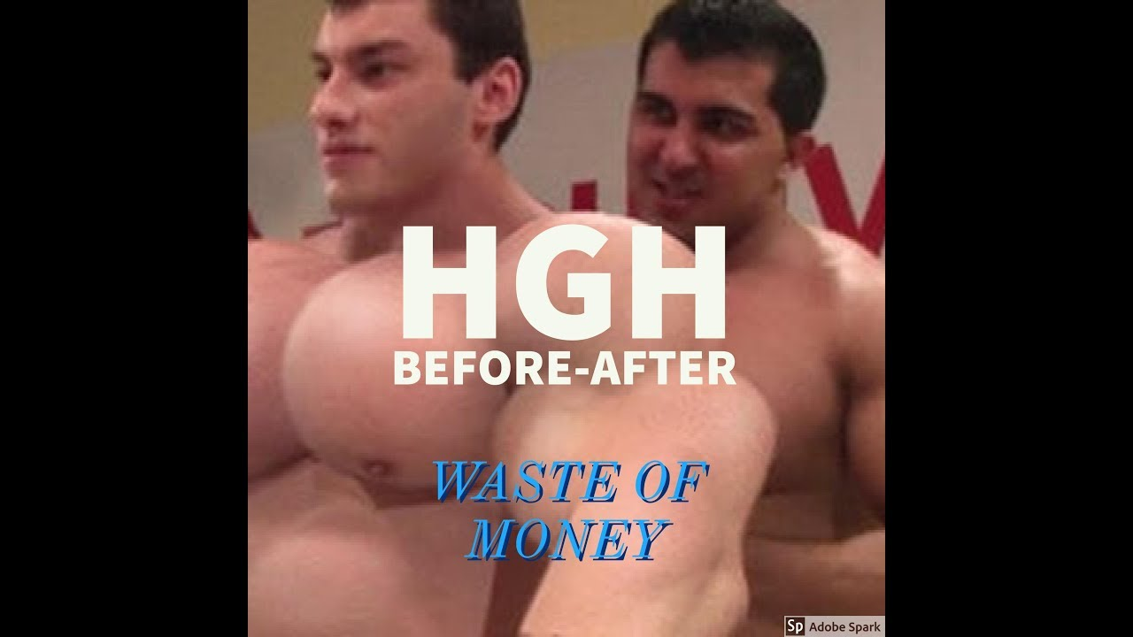 Human Growth Hormone(HGH) हिंदी- is it Waste of MONEY? | SUBSCRIBE Today  for more HIDDEN SECRETS