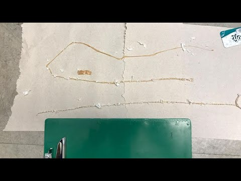 Man Pulls 5-Foot-Long Tapeworm Out of His Gut