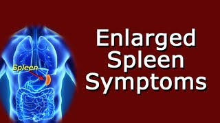 Enlarged Spleen Symptoms
