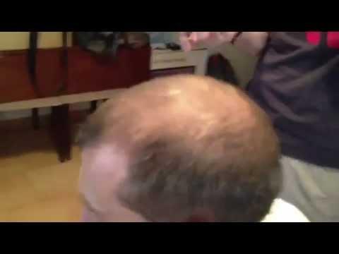 Прикольный девайс для лысеющих