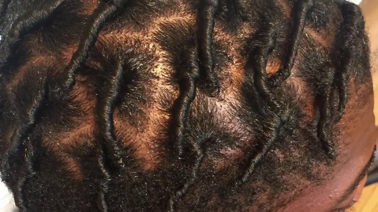 Starter Locs How To Start Locs On Short Curly Hair Youtube
