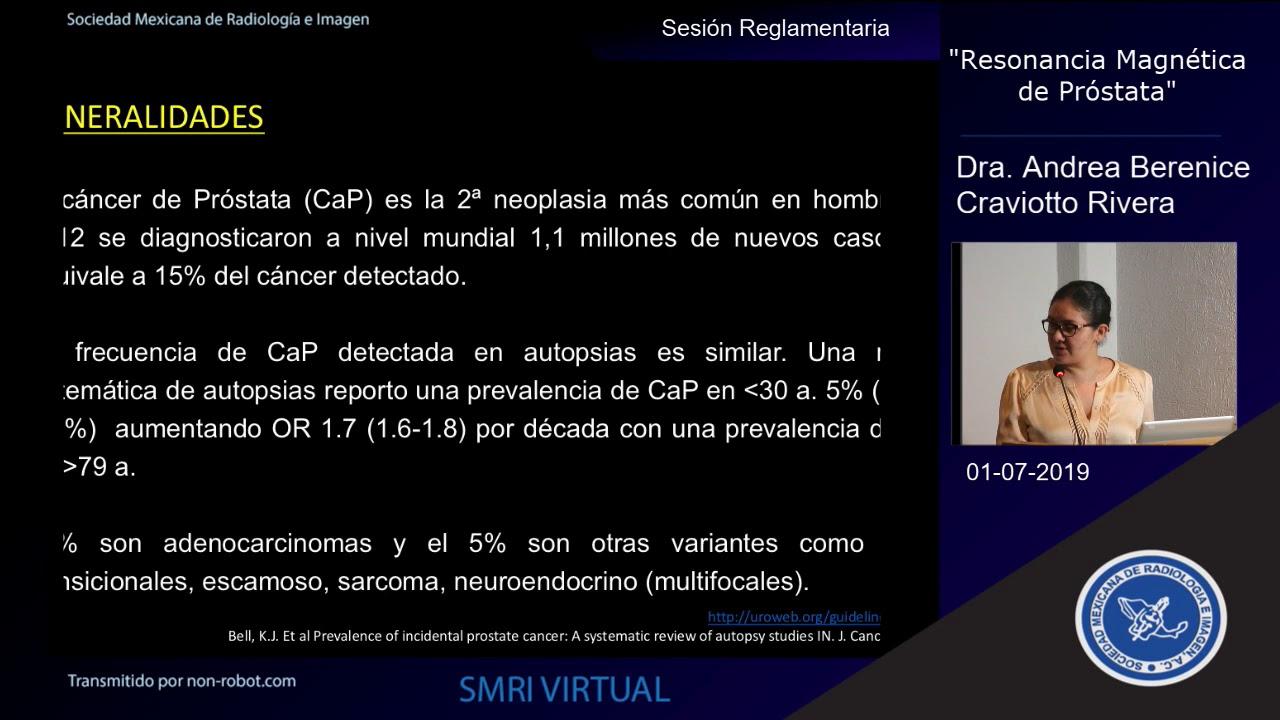 próstata pi rads 5 ultrasonido