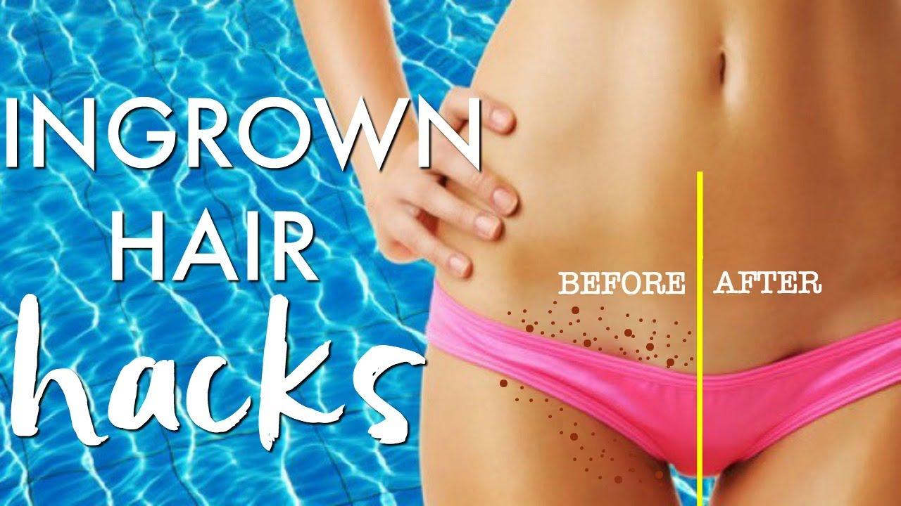 The Best 11 Natural Ingrown Hair Remedies For Ingrown Pubic Hair