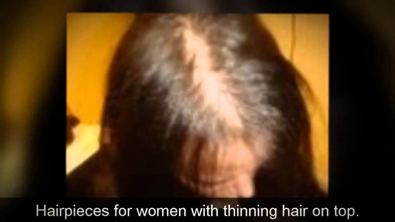 stop hair loss clip hairpieces