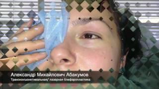 Лазерная блефаропластика   пластический хирург Абакумов А  М