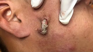 (59) CYST IN THE CHEEK  Windy Spa