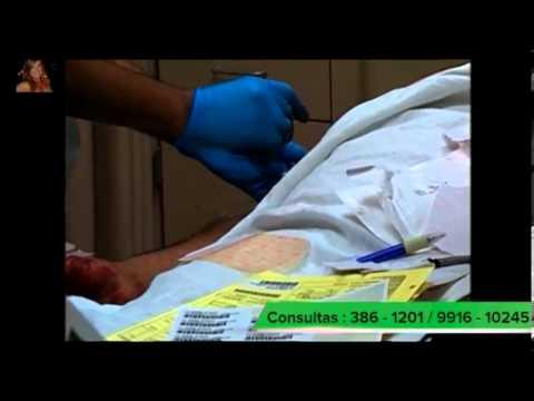 la gastritis sintomas