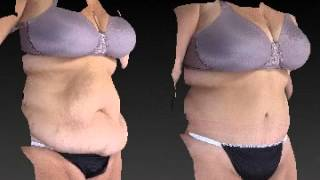 Tummy Tuck Before and After - 2