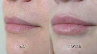 Увеличение губ (до и после) ЛИНЛАЙН-РЕАЛИТИ