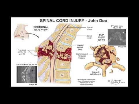 PODCAST 46: Spinal Cord Injury