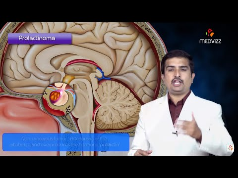 prolactinoma-pathology-usmle-step-1---quick-review
