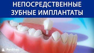 Непосредственные зубные имплантаты после удаление зуба ©(3D-видео Clínica Pardiñas (http://bit.ly/1AWGytT) об установке зубные имплантаты после удаления зубов. Показывается удаление..., 2016-11-17T09:48:23.000Z)