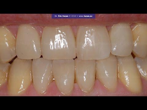 Dr Eric Hazan a Paris: Dental Veneers, Facettes dentaires, case #3
