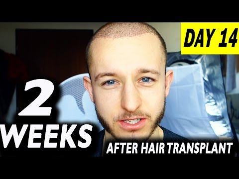 Fue Hair Transplant 2 Weeks (post op) Istanbul, Turkey