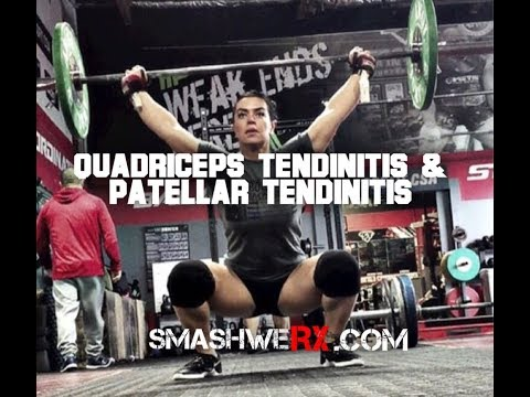Quad Tendinitis and Patellar Tendinitis and How to Fix It | Trevor Bachmeyer | SmashweRx