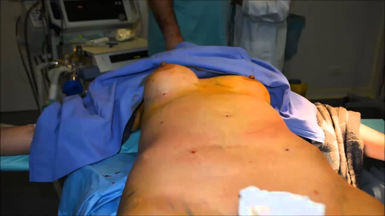La mamada después de la operación en el pecho