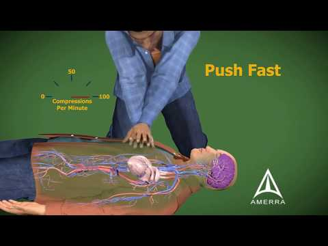Cardiopulmonary Resuscitation - CPR - 3D Medical Animation