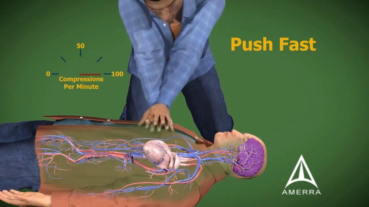 cardiopulmonary resuscitation cpr 3d medical animation