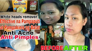 PAMPAPUTI AT PAMPAKINIS MURA AT NATURAL|FACE&BODY SCRUB REMEDY USING BAKING SODA|SKIN REMEDY